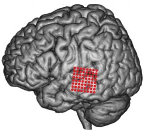 Red circles show the position of electrode arrays on the surface of the superior and middle temporal gyrus. doi:10.1371/journal.pbio.1001251.g001